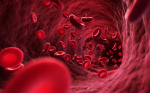 Myelodysplastic Syndromes – Just a Matter of Age?