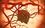 Immune Checkpoint Inhibition for Triple-negative Breast Cancer