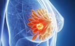 Endocrine Therapeutic Strategies for Patients with Hormone Receptor-positive Advanced Breast Cancer
