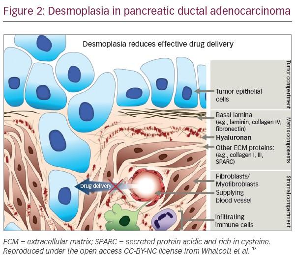 Figure_2_Desmoplasia_in_pancreatic_ductal_adenocarcinoma