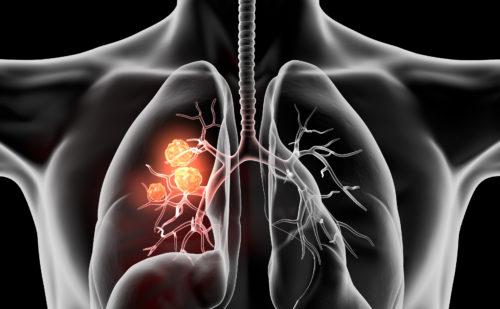 Durvalumab: First Immunotherapy to be Approved for Stage III Non-small Cell Lung Cancer