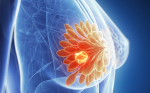 Positron-emission Tomography Imaging in Breast Cancer