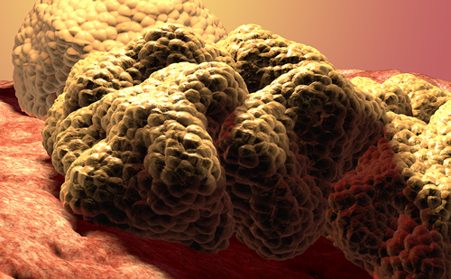 Pembrolizumab Plus Axitinib Improves Survival as First-line Treatment in Patients with Renal Cell Carcinoma