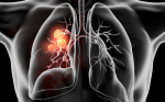 >The PACIFIC Trial—Where Do We Go from Here in Immunotherapy for Non-small Cell Lung Cancer?