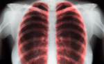 Competing Immune Biomarkers in the Selection of First-line Therapy in Non-small Cell Lung Cancer
