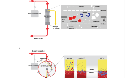 Centrifugal and Membrane Therapeutic Plasma Exchange – A Mini-review