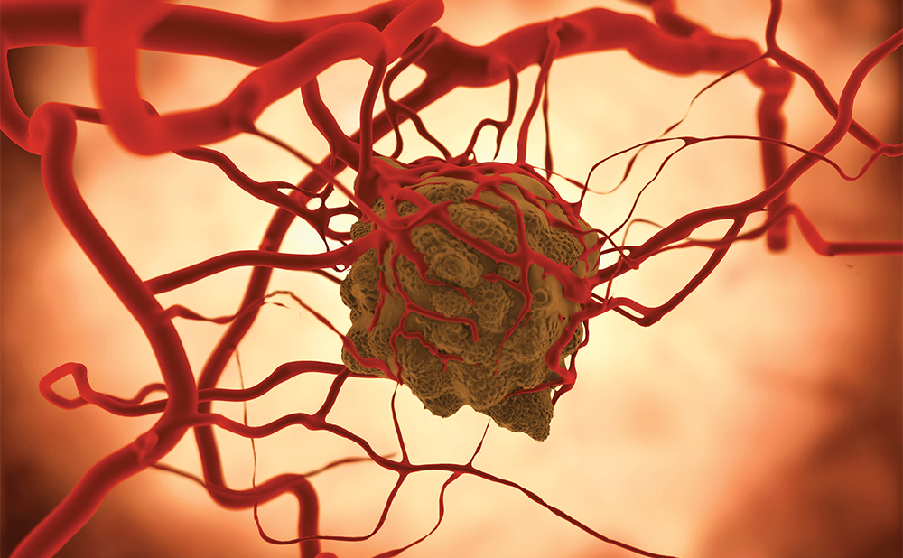 <strong>Annual Meeting of the American Society of Clinical Oncology 2019 – Maintenance Therapy with Olaparib Slows the Growth of Metastatic Pancreatic Cancer with <em>BRCA</em> Mutations</strong>