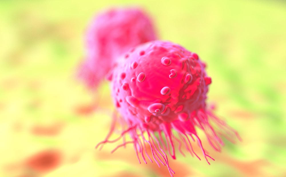 New Insights into Genetic Alterations in Penile Squamous Cell Carcinoma