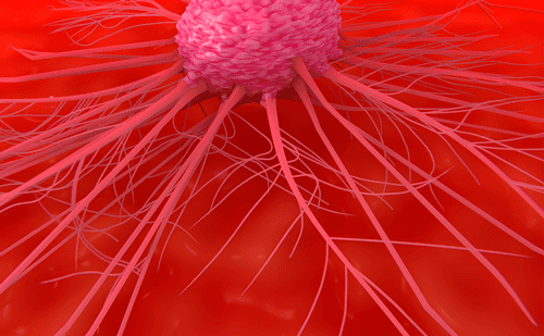 Novel Strategies on the Horizon for Metastatic Pancreatic Cancer Management