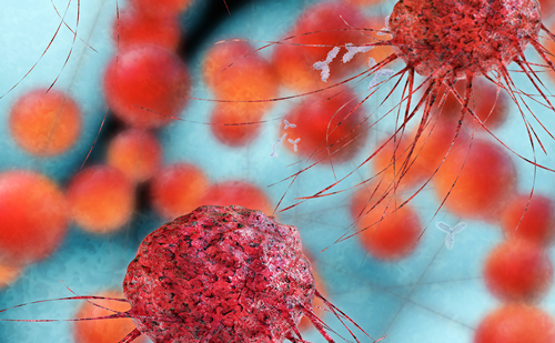 <strong>ASCO 2019: Prostate cancer highlights</strong>