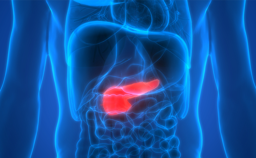 Improving Outcomes in Pancreatic Cancer